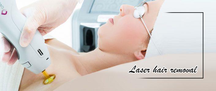 هر آنچه باید قبل از لیزر موهای زائد بدانیم