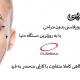 بلفاروپلاستی نوین(بدون جراحی)